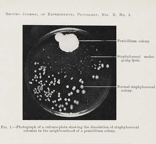 history of microorganisms discovery A brief history of fermentation, east and west  these aided salt-tolerant yeasts and bacteria a brief history of fermentation in the  the discovery .